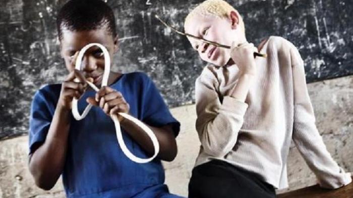 Warga Albino Jadi Terget Perburuan, Organ Tubuhnya untuk Ilmu Sihir