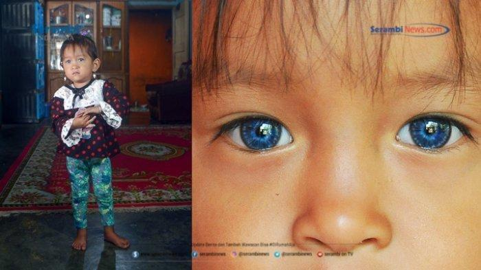 Sederet Potret Orang-orang Bermata Biru dari Minangkabau, Begini Sejarahnya - alika-25-berpose-di-rumahnya-si-mata-biru-okee-1.jpg