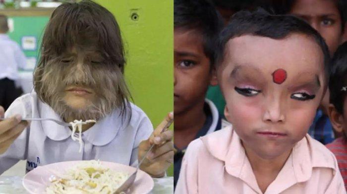 7 Anak Ini Dianggap Paling Unik di Dunia, No 4 Ada di Indonesia Loh