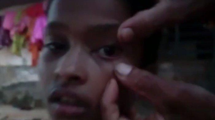 Dokter Hanya Tercengang, Mata Gadis ini Keluarkan 60 Semut