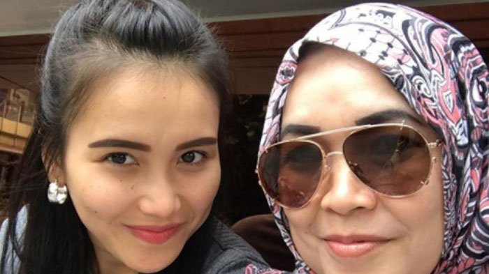Foto Umi Kalsum Sebelum dan Sesuah Botox dan Tanam Benang Dibongkar, Ibu Ayu Ting Ting Kian Cantik?