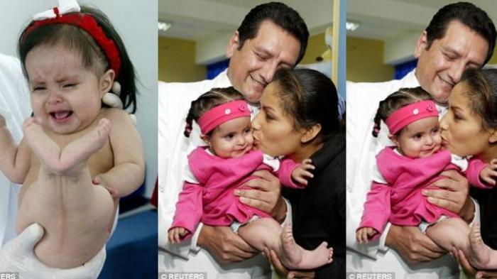 Bayi Langka Ini Lahir dengan Kaki Mirip Putri Duyung