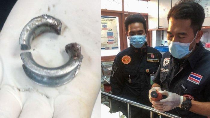 Pria Ini Sungguh Nekat, Coba Pakai Cincin Besi di Alat Vital untuk Layani Pacar, Berakhir Operasi