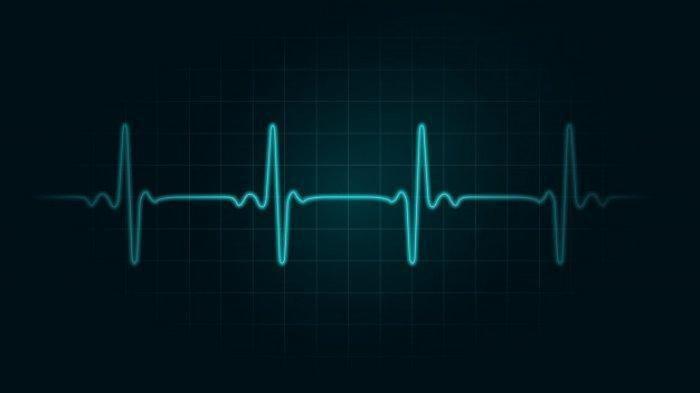Penyakit Jantung Aritmia Bisa Diobati, Begini Caranya