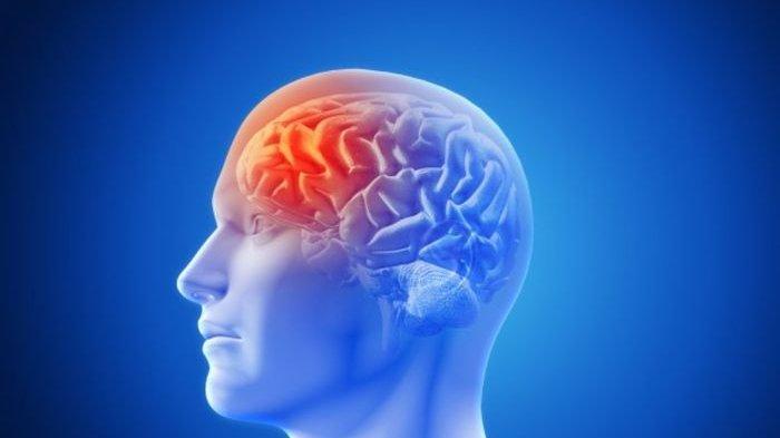 Ketahui Gejala dan Penyebab Pendarahan Otak, Kondisi Darurat yang Butuh Penanganan Medis Secepatnya