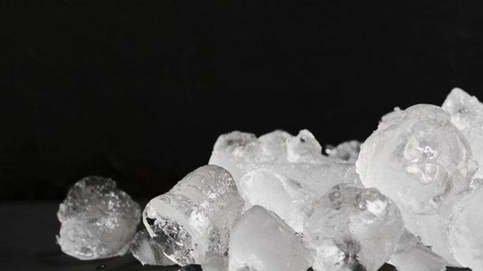 Tahukah Anda Kompres Es Batu Ternyata Bisa Redakan Nyeri Asam Urat dengan Cepat