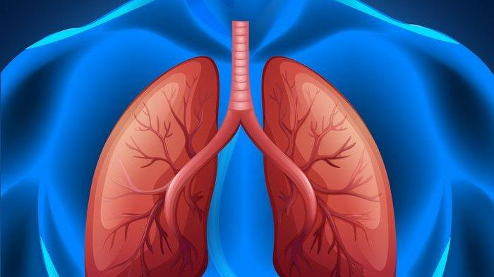 Infeksi Paru-paru Bisa Memicu Sesak Napas, Ketahui 10 Gejalanya