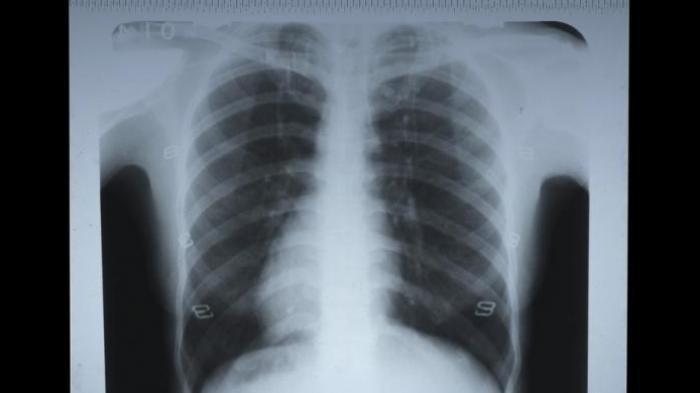INI yang Terjadi pada Paru-paru 3 Pasien Covid-19 Setelah Divaksin Sinovac, Astrazeneca, dan Pfizer