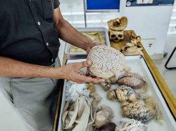 Museum Ini Aneh Pamerkan Otak Manusia Asli Pengunjung Boleh Menyentuhnya