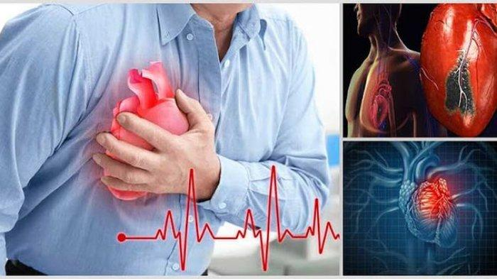 10 Cara Mengobati Penyakit Jantung Sesuai Jenis Gangguan Jantungnya