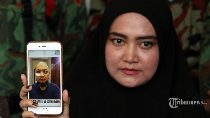 Pelaku Penyerangan Suaminya Ditangkap, Istri Novel Baswedan Malah Khawatir Ada Apa?