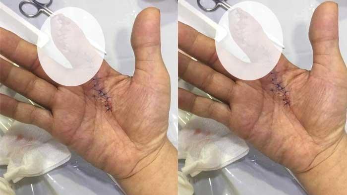 Mengerikan Tangan Pria Ini Diamputasi, Karena Bakteri Pemakan Daging, Awalnya Tertusuk Duri Udang