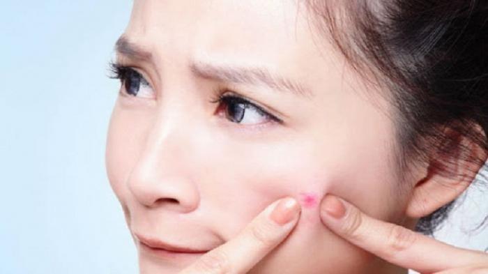 Jangan Biarkan Jerawat Hormonal Ganggu Hari-Harimu, Atasi dengan Cara Dibawah ini!