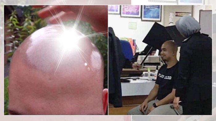Petugas Sampai Turun Tangan karena Kepala Plontos Pria Ini, Menyilaukan saat Difoto untuk Passport