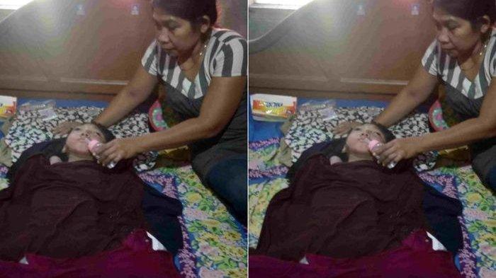 Gadis Lumpuh Selama 15 Tahun, Kulitnya pun Mengelupas dan Kaku Seperti Kayu, Sempat Dibawa ke Dukun