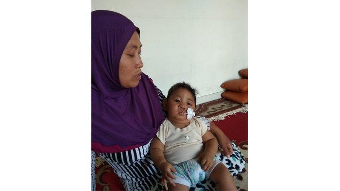 Dirgantara, Bayi Jantung Bocor Butuh Bantuan Dana. Sang Ibu Bahkan Rela Jual Mukena untuk Beli Susu