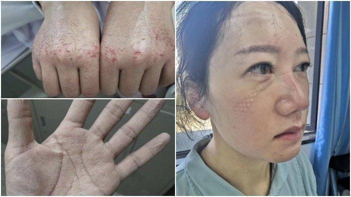 Kondisi Petugas Medis di Wuhan yang Tangani Pasien Virus Corona, Wajah Luka hingga Tidur Melantai