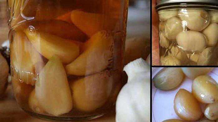 Manfaat Bawang Putih Hasil Fermentasi dan Cara Mudah Membuatnya