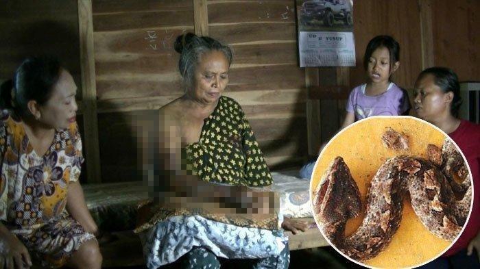 Cerita Nenek 60 Tahun di Gunungkidul Digigit Ular Tanah, Lalu Muntah Darah dan Tanganya Melepuh