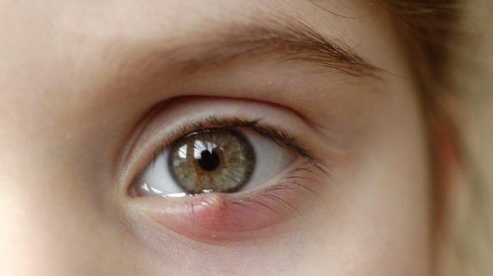 7 Cara Alami Mengobati Mata Bintitan dengan Cepat, Satu di Antaranya Gunakan Kantong Teh