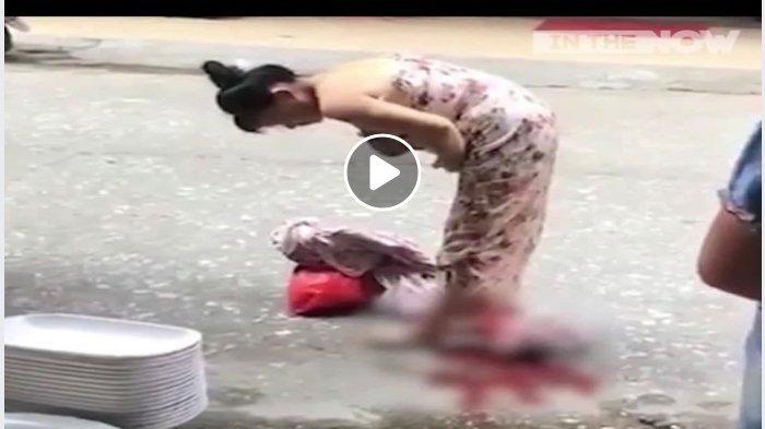 Wanita Ini Membungkuk di Jalan, Tiba-tiba Warga Panik Lihat Ini Keluar dari Sela Kakinya