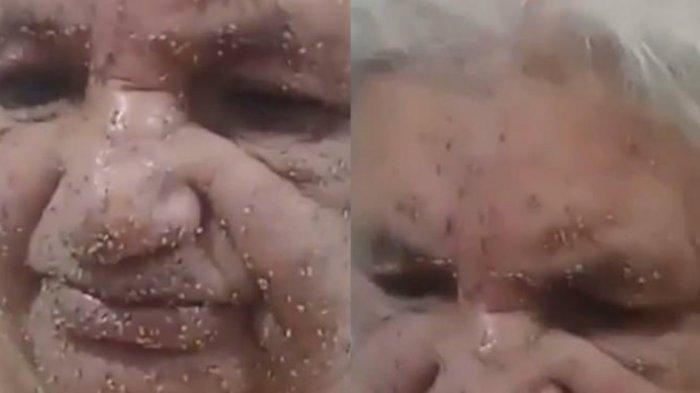 Viral Video Nenek 72 Tahun Wajahnya Bengkak Setelah Disengat Ribuan Lebah dan Dilarikan ke RS