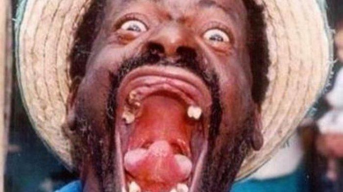 Tertawa Ngakak Ternyata Dapat Picu Kematian, Sopir Truk Es Krim Ini Contohnya