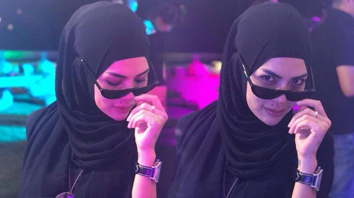 Begini Bentuk Bibir Dower Nakita Mirzani yang Diklaim Seharga Rp 109 Juta, Netter Soroti Hal Ini