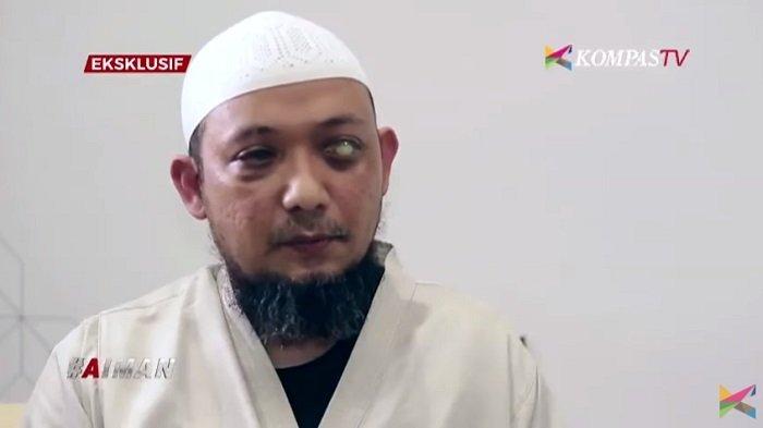 TEKA-TEKI Penyiram Air Keras Penyidik KPK Novel Baswedan Terungkap, 2 Oknum Polisi Diperiksa