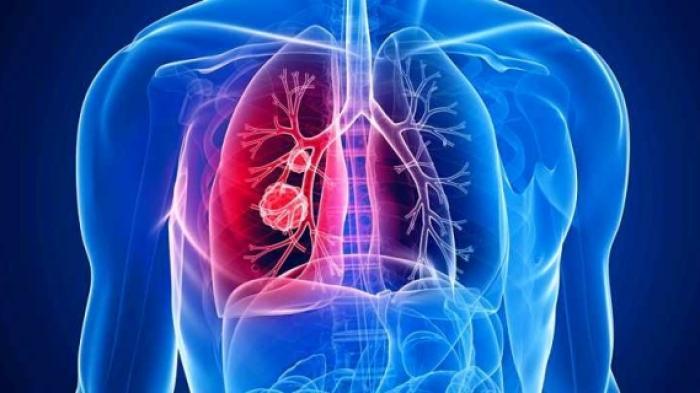 Kena Asap Rokok dan Polusi, Ini 7 Cara Alami Membersihkan Paru-Paru Biar Lebih Sehat