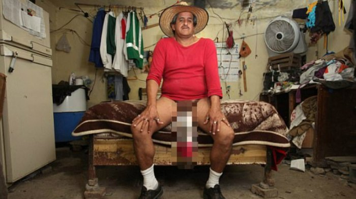 Pria Pemilik 'Mr P' Terpanjang Ini Gagal Jadi Bintang Film Malah Jadi Cacat, Hidupnya Merana