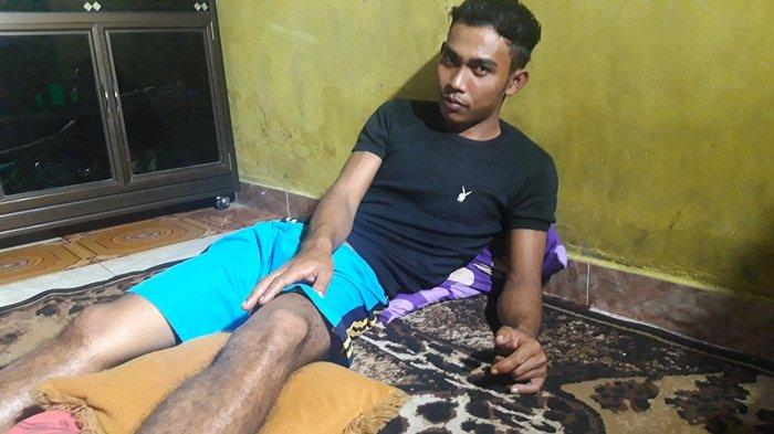 Salah satu pekerja Jembatan Jerambah Gantung, Acep Kusnadi alias Cecep (24) mengalami keselo kaki sebelah kiri, di kediamannya Di Kelurahan Jerambah Gantung, Gabek, Kota Pangkalpinang. Jumat (16/10/2020)