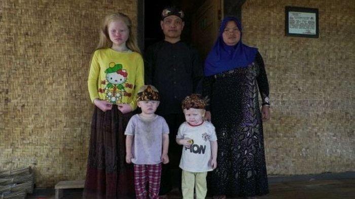 Selama 149 Generasi Memiliki Gen Putih, Ini nKisah Kampung 'Bule' di Bogor