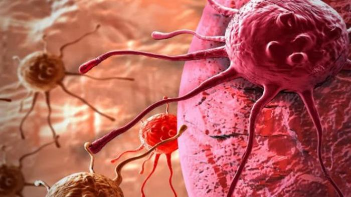 Ada Terapi Baru Manfaatkan Sel Imun untuk Melawan Kanker - Bangka Pos