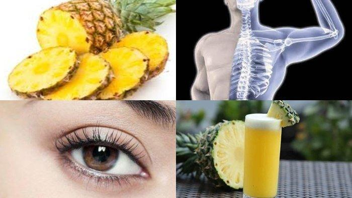 10 Makanan Ini Bisa Mengatasi Keracunan Makanan, Mulai dari Air Kelapa, Pisang hingga Nanas
