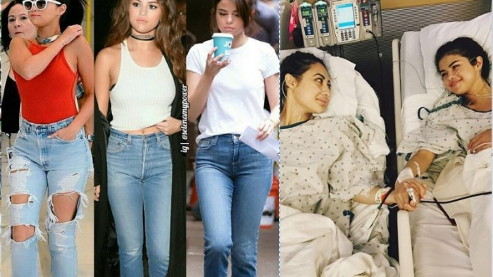 Fakta Berbahaya Penyakit Lupus Sehingga Bisa Memaksa Selena Gomez Cangkok Ginjal