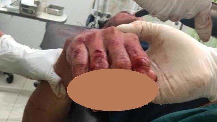 BREAKING NEWS, Viral Dugaan Korban Begal Dirawat, Jemari Tangan Putus dan Kuping Nyaris Putus
