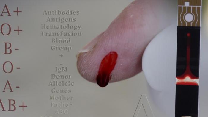 A Mudah Tersinggung, B Mudah Jatuh Cinta, Inilah Kepribadian Seseorang Berdasarkan Golongan Darah