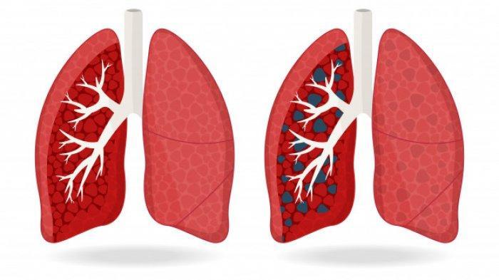 Waspadai 5 Komplikasi TBC, Siapa yang Paling Berisiko?