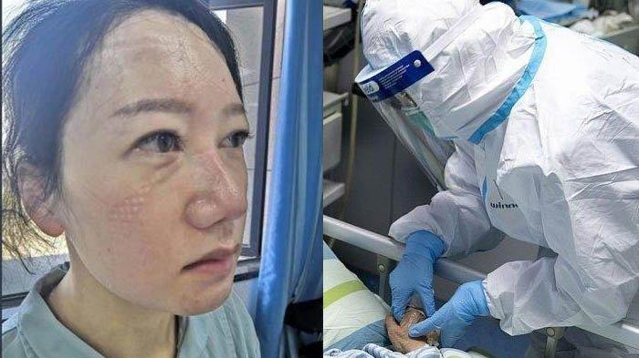 Viral Foto Wajah dan Tangan Tim Medis Pasien Corona, Ada Bekas Masker, Tangan Keriput hingga Luka