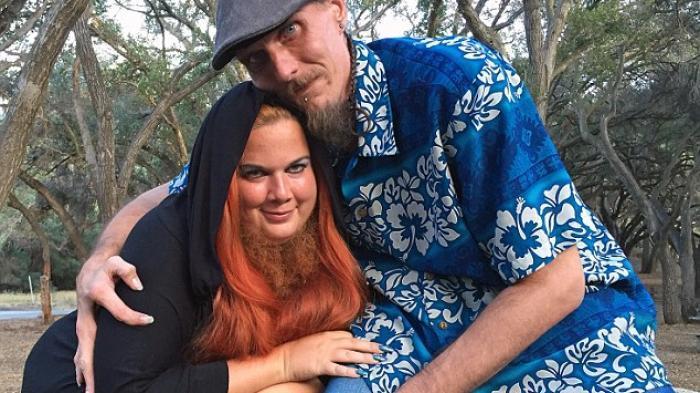 Wanita Berjenggot Ini Jatuh Cinta Pada Pria 'Lobster'