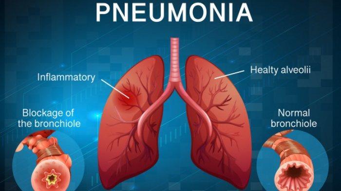 Waspadai 6 Bahaya Pneumonia, Kondisi yang Berpotensi Mengancam Jiwa