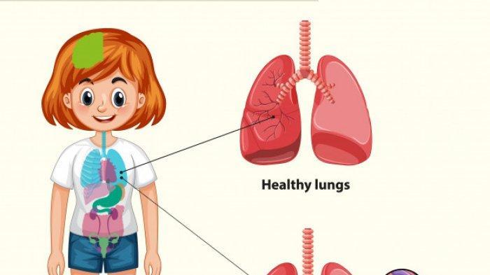 Waspadai 6 Gejala TBC pada Anak