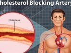 ilustrasi_____kolesterol.jpg