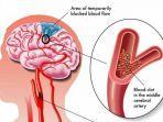 promkeskemkesgoid-pola-hidup-sehat-kurangi-faktor-risiko-stroke.jpg