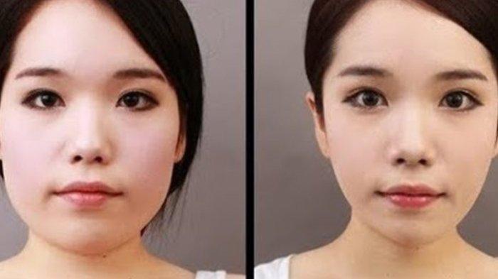 Tanpa Oplas 10 Tips Agar Pipi Tirus Seperti Wajah Syahrini Luna Maya Maia Estianty Agnez Mo Banjarmasin Post