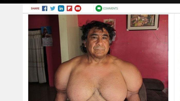 Pria Asal Peru Mendadak Punya Tubuh Kekar Layaknya Popeye, Ternyata Ini Gara-garanya