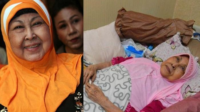 Sebabkan Kebutaan Nomor 2 di Indonesia, Ini 7 Faktor Risiko Glaukoma yang Wajib Dikenali