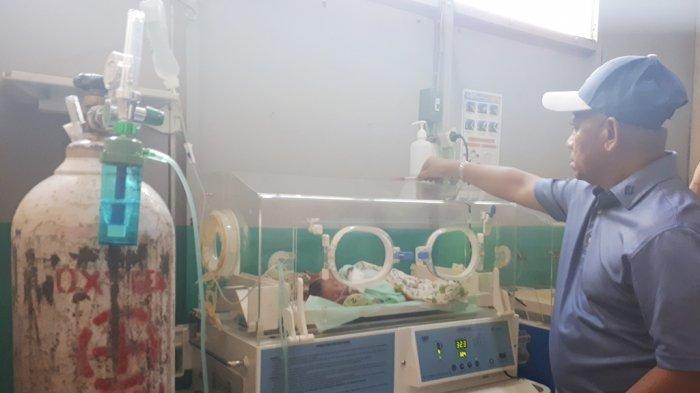Fakta Baru Bayi Berkepala Dua di HSU - Bayi Kembar Siam Miliki Satu Jantung dan 2 Paru - Paru