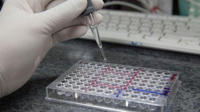 Inilah RI-GHA, Alat Rapid Test Seharga Rp 75 Ribu Buatan Anak Bangsa dan Hasilnya Diklaim Akurat